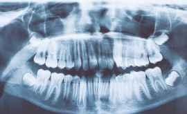 """Dinții sînt """"arhiva vieții"""" fiecărui om"""