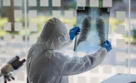 Pulmonologii: Pînă la 30% dintre persoanele tratate de coronavirus au probleme respiratorii