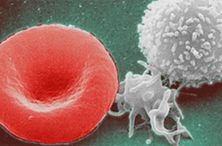 Înfometarea timp de trei zile va reînnoi sistemul imunitar