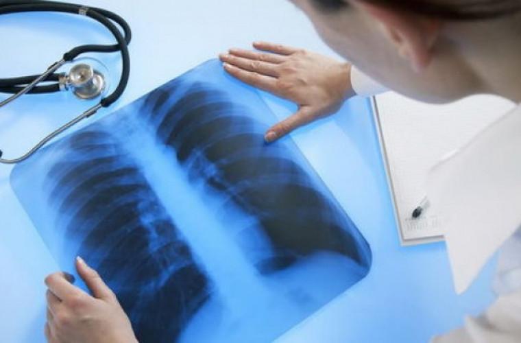 Azi este marcată Ziua mondială de luptă împotriva tuberculozei