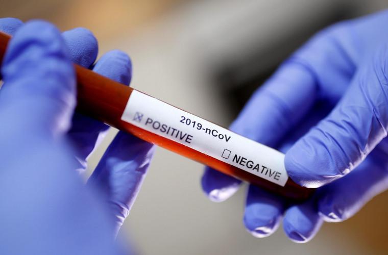 Doi medici din Bălți s-au infectat cu coronavirus