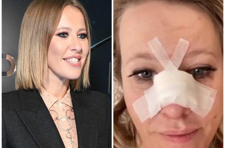 Prezentatoarea TV, Xenia Sobceak, și-a rupt nasul și a ajuns la spital