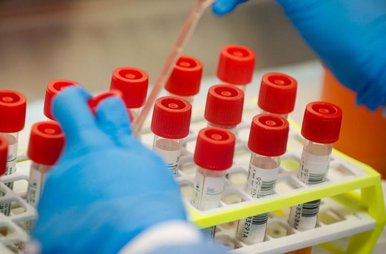 coronavirus-sua-a-depasit-pragul-de-cinci-milioane-de-infectati