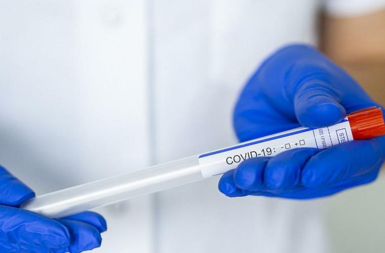 medicii-canadieni-incerca-o-noua-metoda-de-testare-a-covid-19